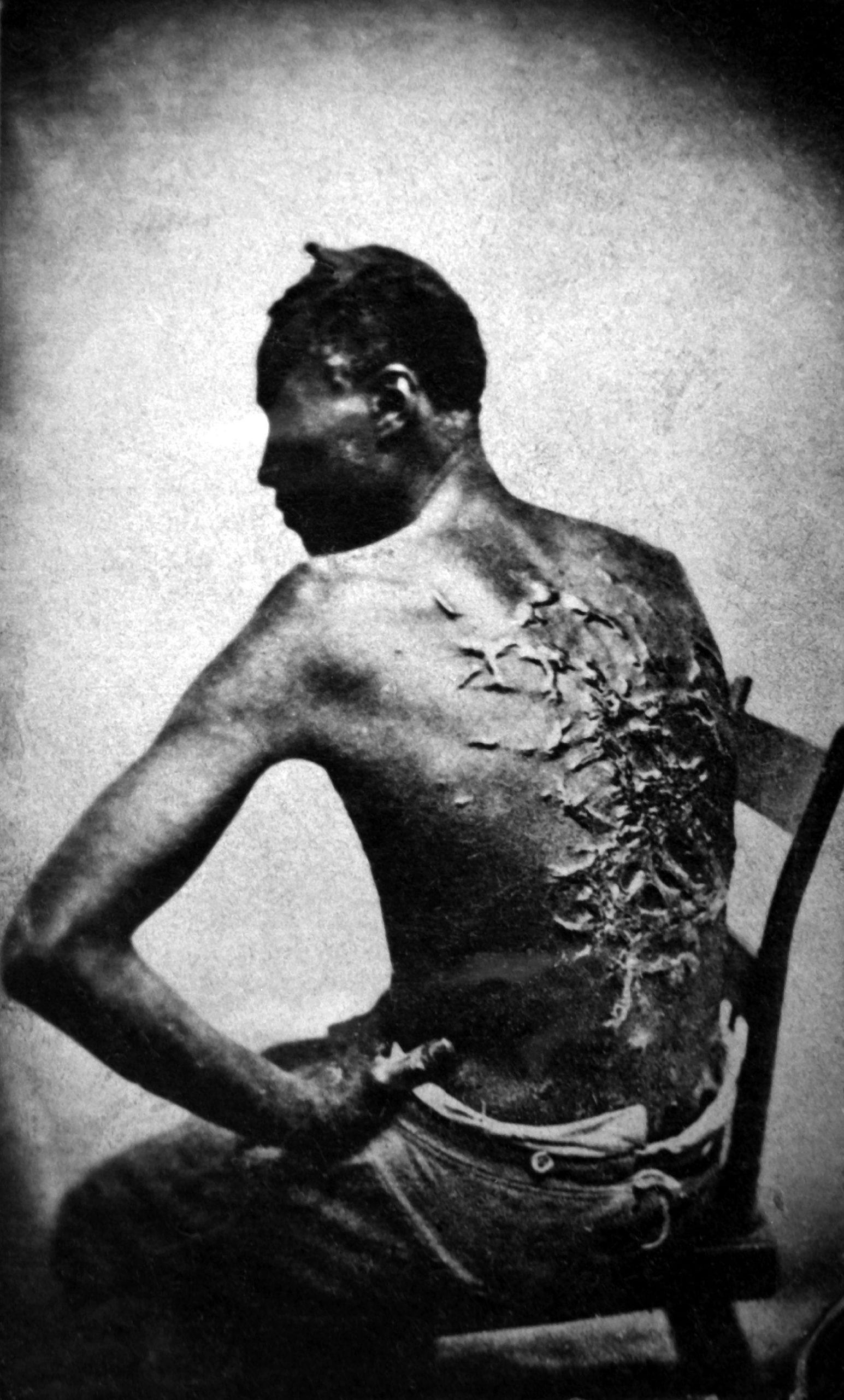 souffrance des noirs au monde Amérique